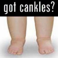 cankles.jpg